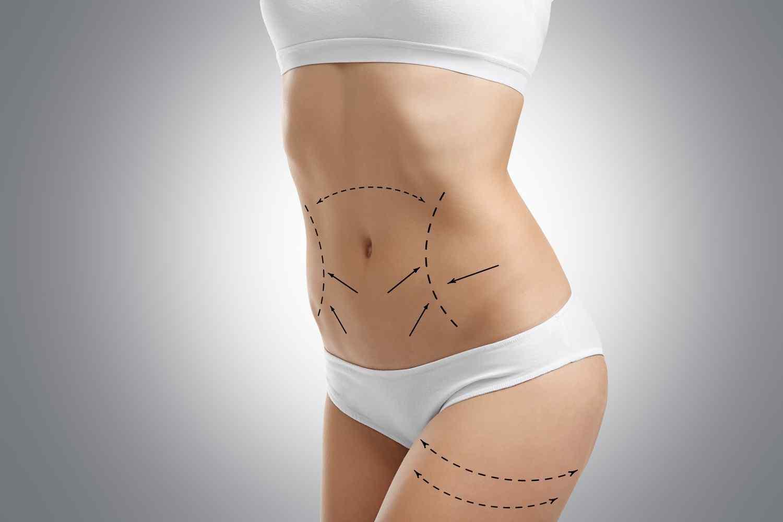 https://www.drgharbinedra.com/wp-content/uploads/2017/08/cosmetic-surgery-blog-06-1.jpg