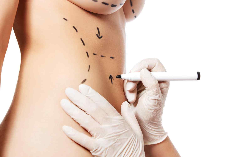 https://www.drgharbinedra.com/wp-content/uploads/2017/08/cosmetic-surgery-blog-11-1.jpg