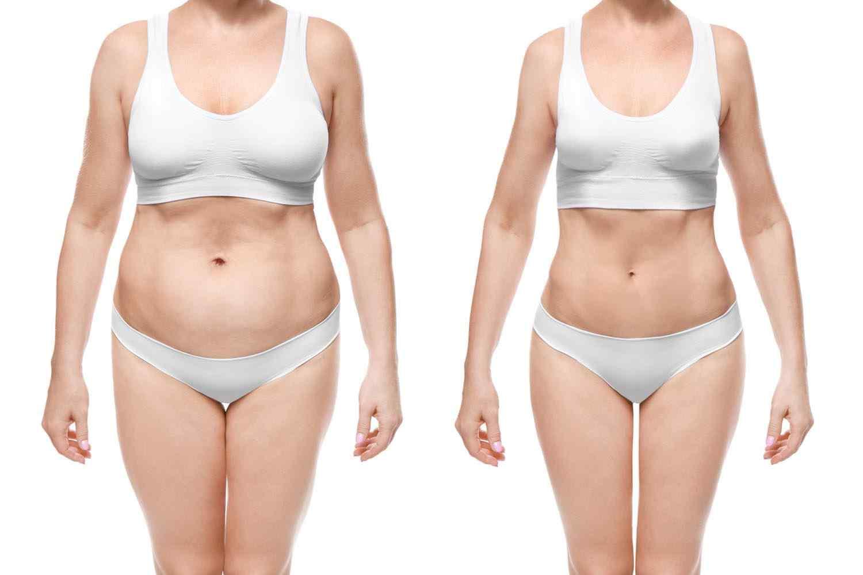 https://www.drgharbinedra.com/wp-content/uploads/2017/08/cosmetic-surgery-blog-24-1.jpg